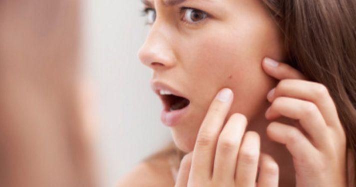 Pimples में Oats के फायदे