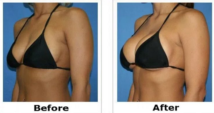 How to Increase Breast Size in Hindi with 10 best tips