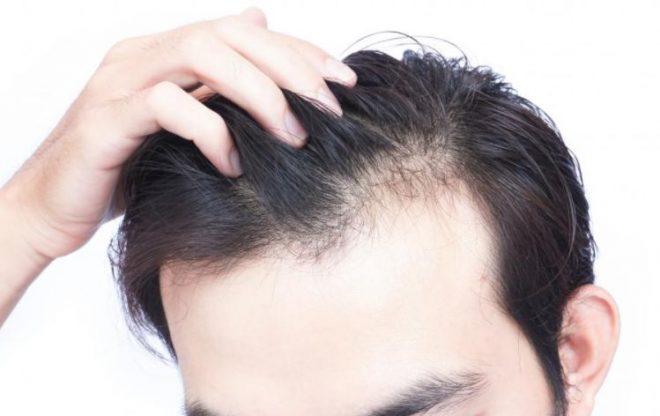 Best Hair Fall Treatment in Hindi